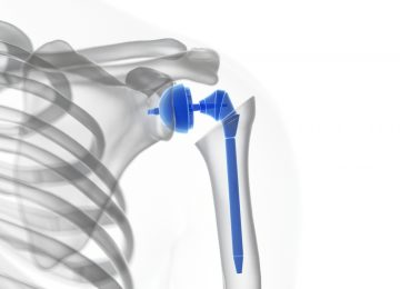 3d,Rendered,Medically,Accurate,Illustration,Of,A,Shoulder,Replacement
